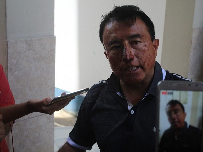 Periodista sufre brutal golpiza por supuesto invasor de Chinecas
